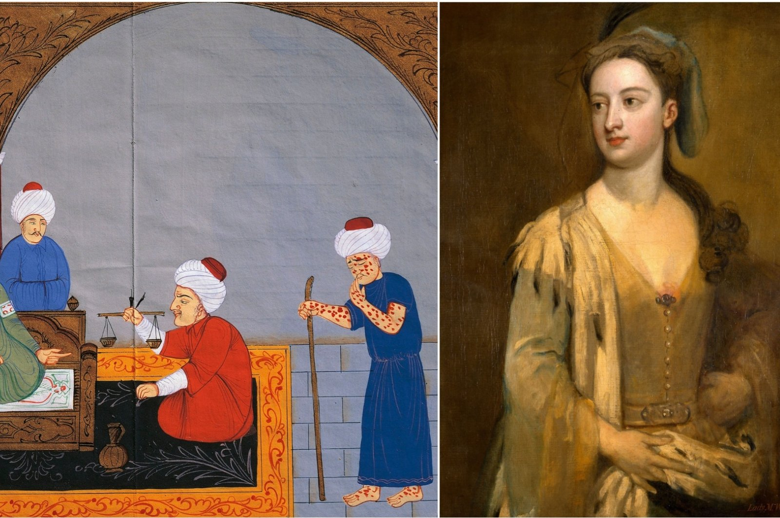 Ottoman manuscripts depict one of the fathers of early medicine, Ibn Sina, known in the West as Avicenna, treating patients with smallpox (L), but it wasn't until Lady Mary Wortley Montagu (R) saw it in Turkey that Europe developed the modern vaccine. (Istanbul University Library/Universal Images Group via Getty Images)