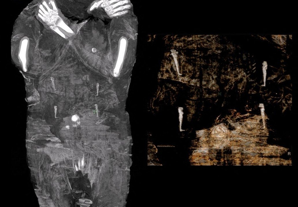 X-Ray images of the pregnant Egyptian mummy taken in 2015 at a medical centre in Otwock near Warsaw, Poland. (Warsaw Mummy Project via AFP)