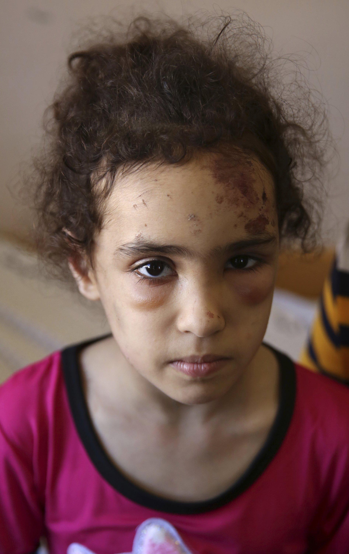 Suzy Ishkontana, 7, sits at Shifa Hospital in Gaza City, May 18, 2021. (AP Photo)