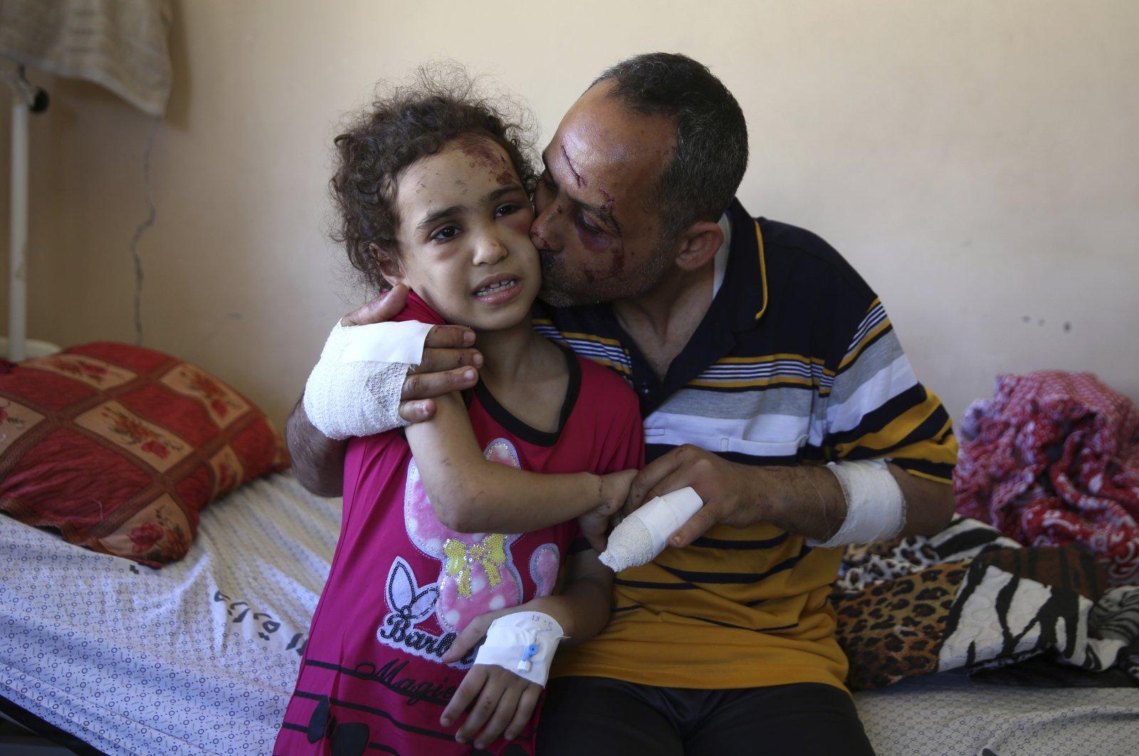 Suzy Ishkontana, 7, is kissed by her father Riad Ishkontana, 42, at Shifa Hospital in Gaza City, Palestine, May 18, 2021. (AP Photo)