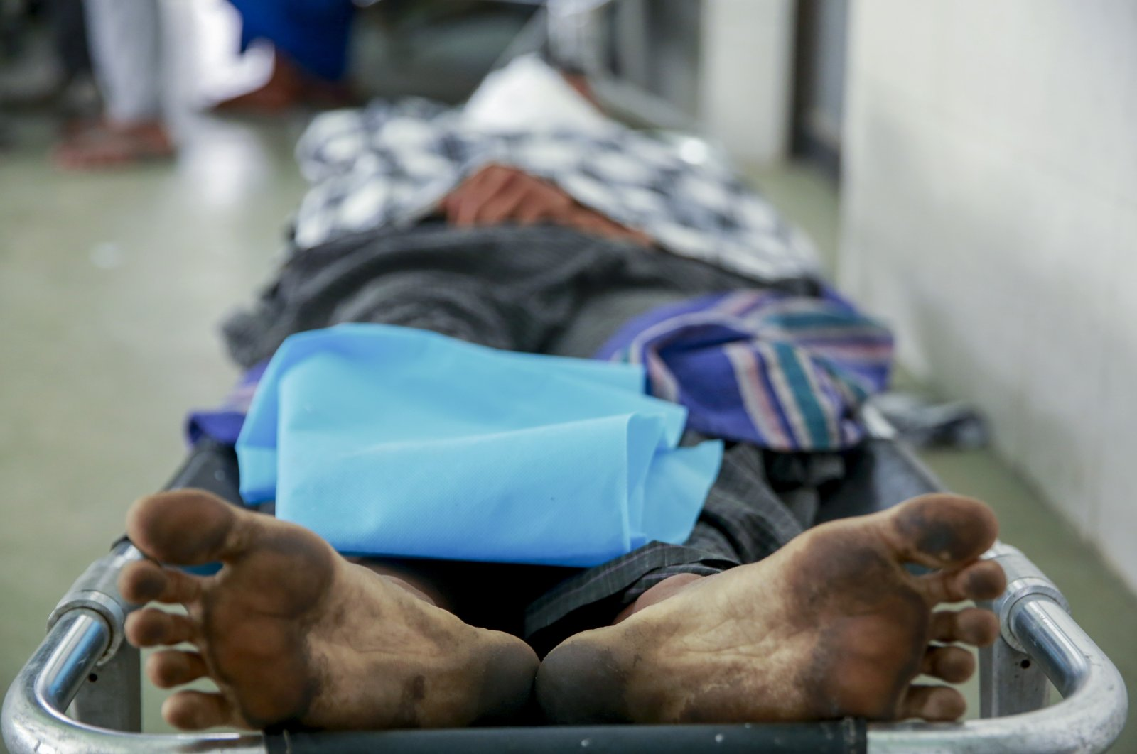 The body of a man who a doctor said was shot and killed by Myanmar security forces during an anti-military takeover protest, lies on a stretcher in Mandalay, Myanmar, March 23, 2021. (AP Photo)
