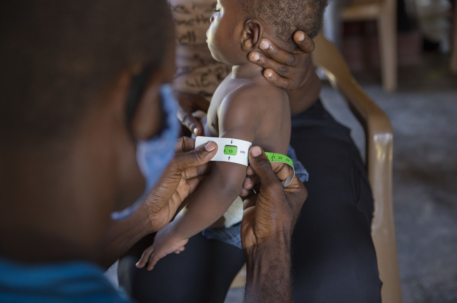 A health care worker measures the mid-upper arm circumference of an infant at a malnutrition clinic run by UNICEF, in Les Cayes, Haiti, May 26, 2021. (AP Photo)