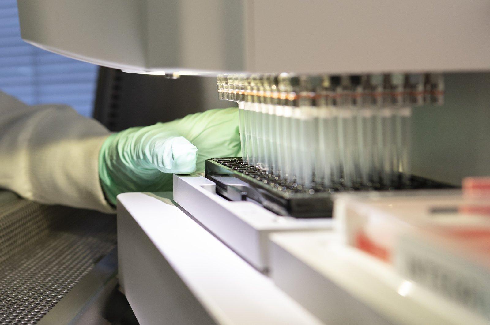 A researcher works on the development of the medication aducanumab in Cambridge, Massachusetts, U.S. (Biogen via AP)