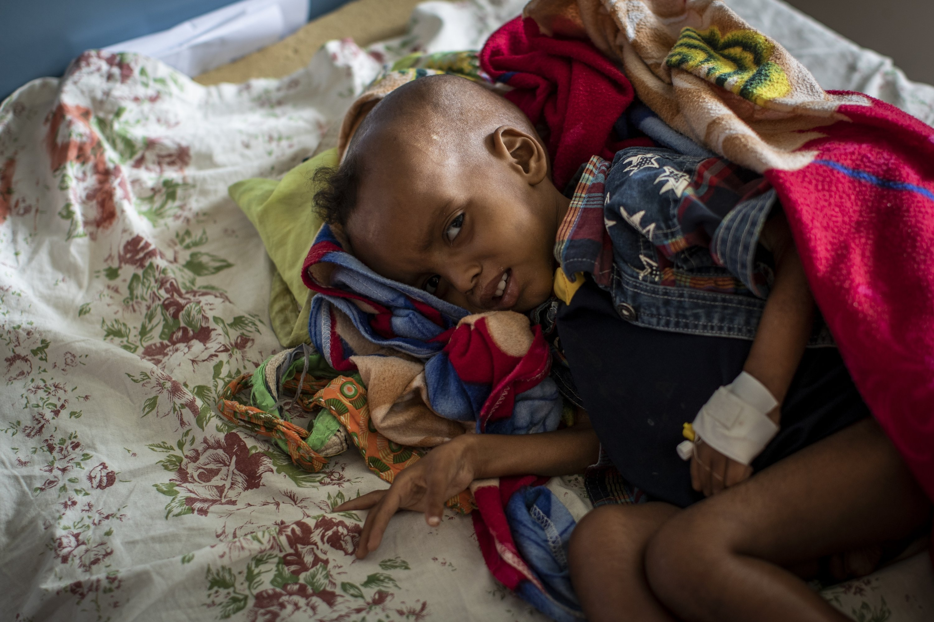 Gebre Kidan Gebrehiwet, 2, is treated for malnutrition after fleeing from the town of Abi Adi with his mother, Abeba Tesfay, at the Ayder Referral Hospital in Mekele, in the Tigray region of northern Ethiopia, May 6, 2021. (AP Photo)