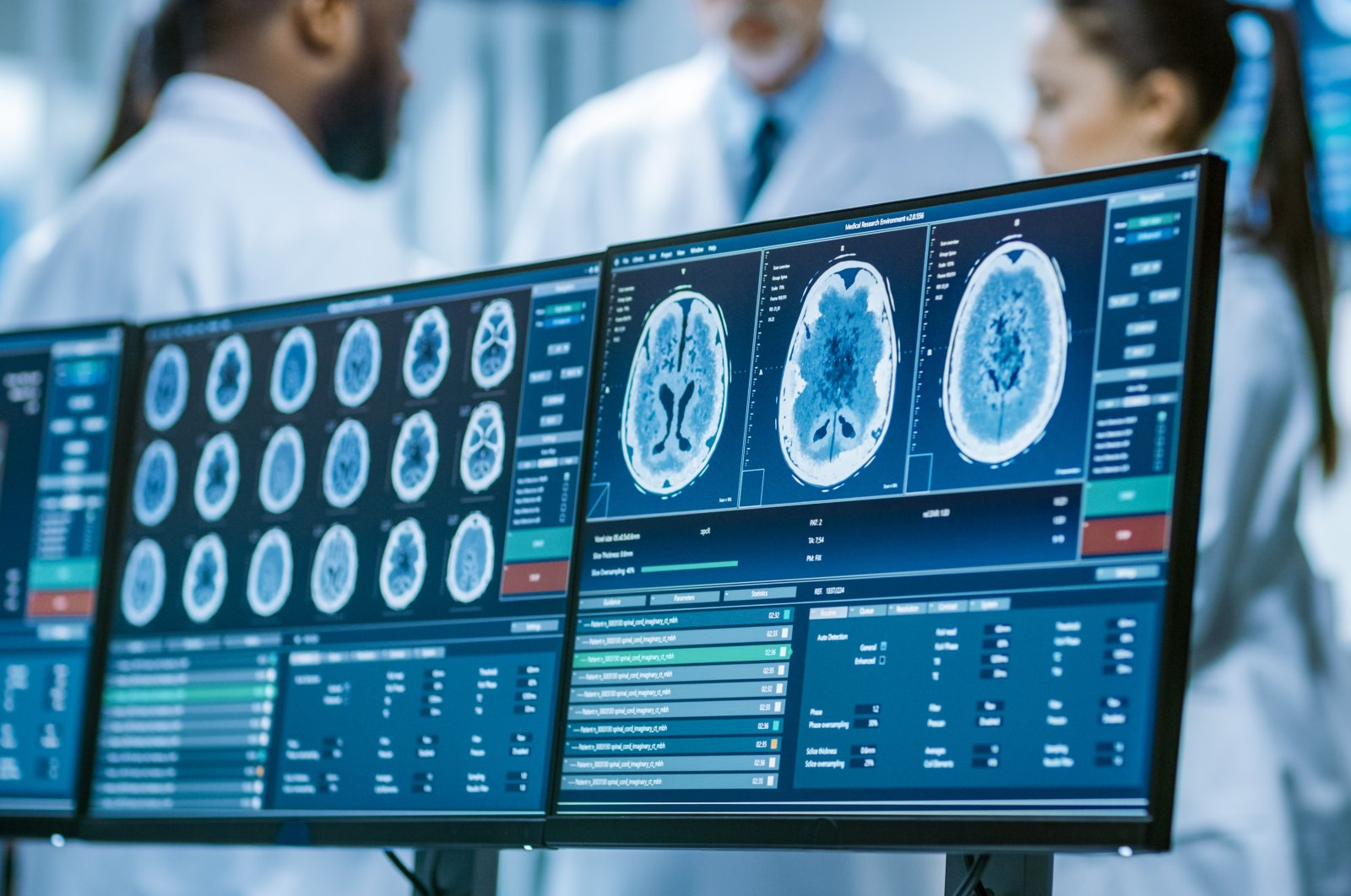 A team of people have a discussion in the background with images of brain scans visible on computer screens. (Shutterstock Photo)