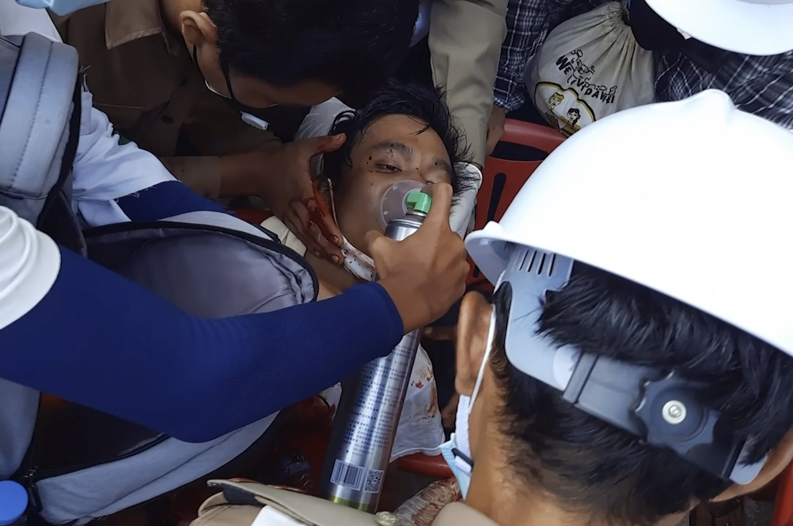In this Sunday, Feb. 28, 2021 image from video provided by Dakkhina Insight, medics attend to a man who appeared to be wounded in his upper chest on a street in Dawei, Myanmar. (AP Photo)