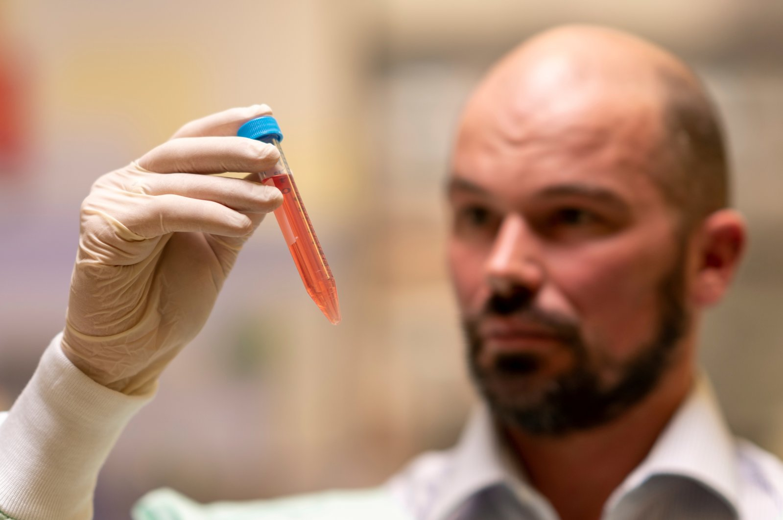 Professor David Nisbet from Australian National University (ANU) holds a vial as researchers from ANU developed a new type of hydrogel that could help to defeat Parkinson's disease, in this undated handout picture. (Reuters Photo)