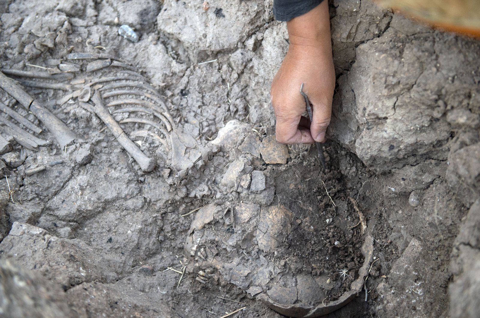 An archaeologist inspects the remains of a skeleton during excavations at the Tozkoparan Mound site in Tunceli, Turkey, Aug. 11, 2021. (AA Photo)