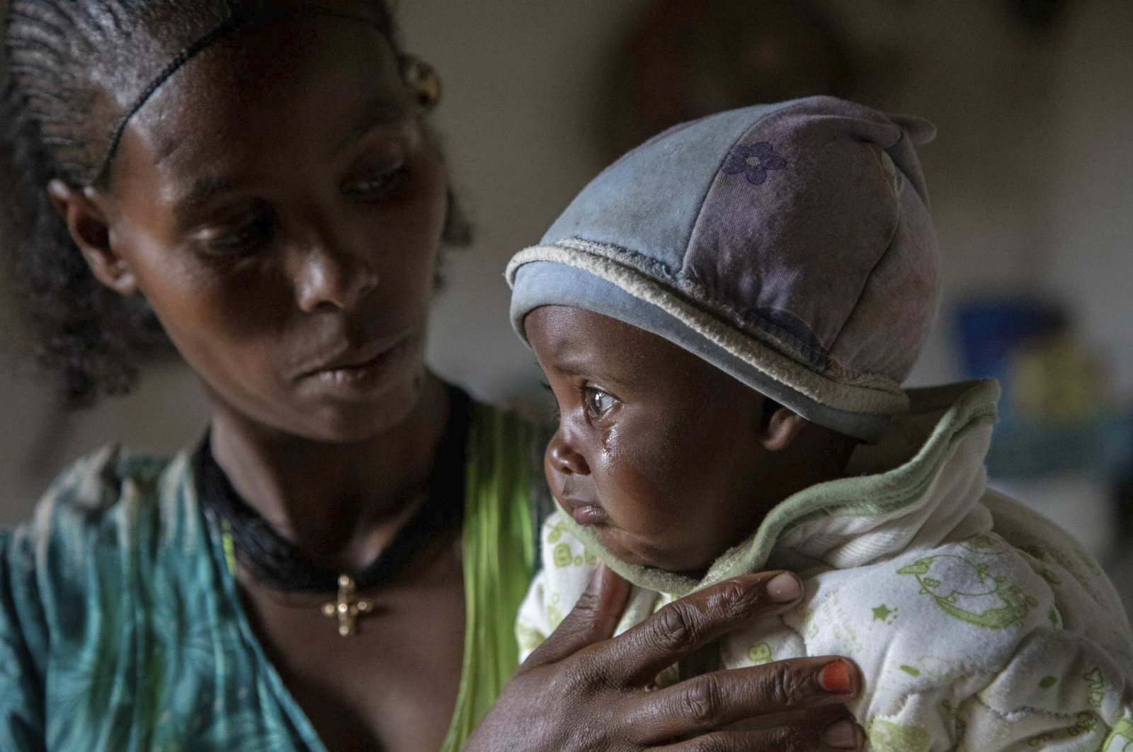 Ababa, 25, comforts her 6-month-old baby Wegahta, who was diagnosed as severely acutely malnourished, in Gijet, the Tigray region, northern Ethiopia, July 20, 2021. (AP Photo)