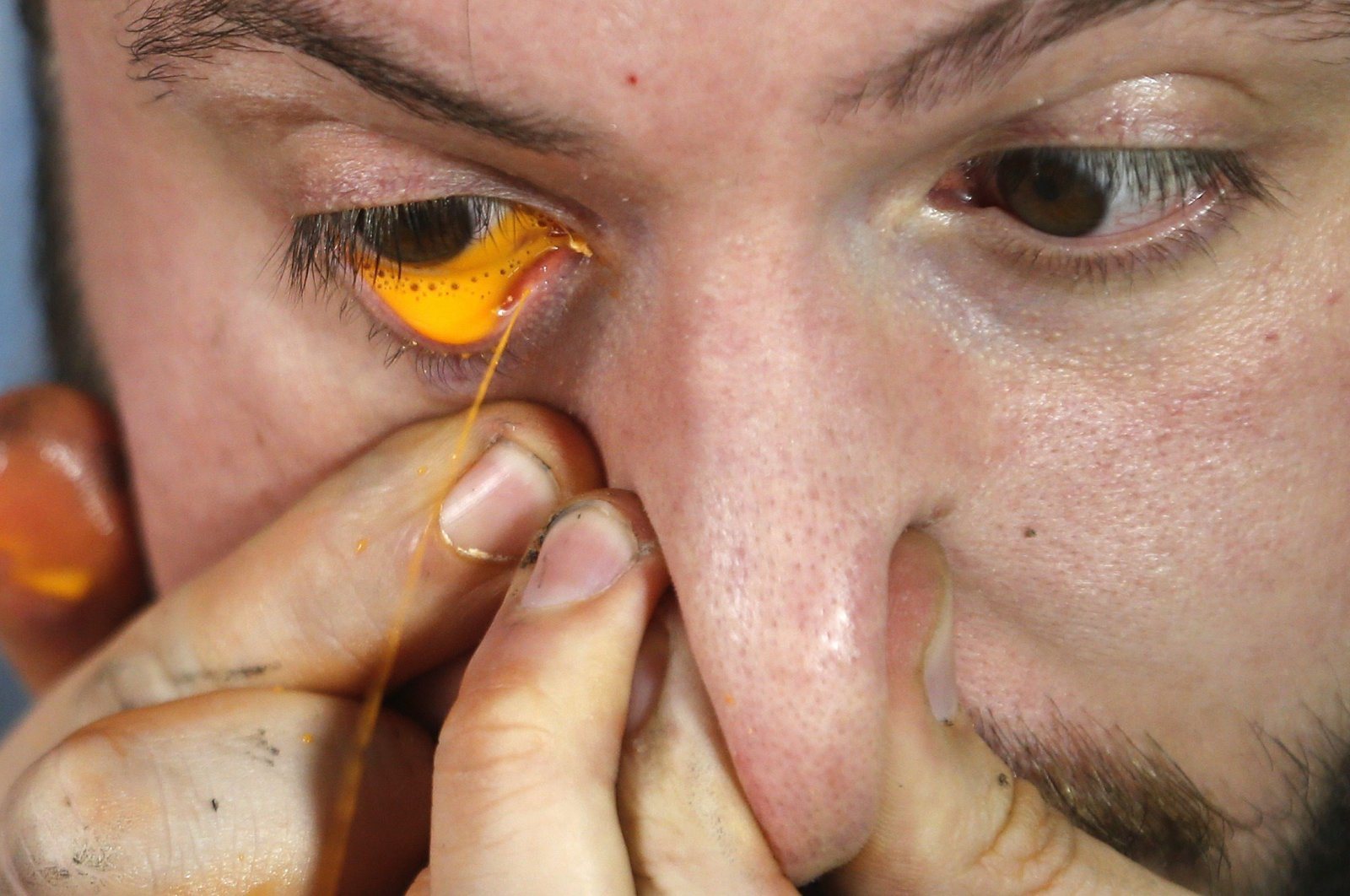 Artist Leandro Granato squirts paint from his eye onto a canvas at his studio in the Alejandro Korn town in greater Buenos Aires, Argentina, Oct.10, 2013. (REUTERS Photo)