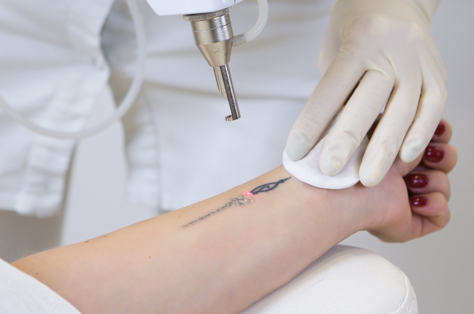 If a tattoo is removed by laser, the treatment usually has to be repeated several times. (Shutterstock Photo)